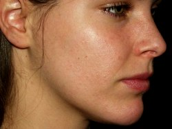 Get rid of Acne – are cosmetic products Your Enemy?