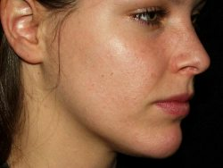 Donkere vlekken Acne Can Be Faded