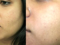 Acne tratamento no local