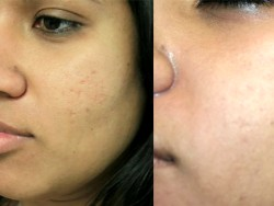 Acne Vulgaris Treatment – Cleaning The Best Way looking skin