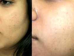 Verdadeiras causas Acne E Acne permanentemente Cure Secrets