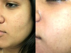 Follow-up uw huid Acne behandeling Acne Skin Care Good
