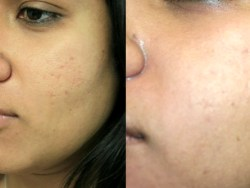 Cleaning Acne Naturally With A Full Understanding of the Cause