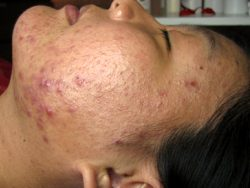 Middle Age Women – Acne Gone!