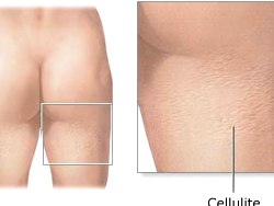 Home Cellulite Treatments – What Can You Do About Cellulite At Home