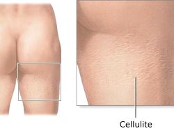 What Will A Workout For Your Cellulite?
