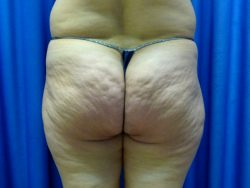 Revitol Cellulite Reviews You Need To Read Before Buying This Product