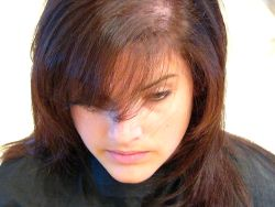 Choosing The Hairloss Treatment Working for You