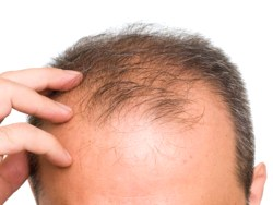 Vitamin For Hair Loss – What You Should Know About B, Ce