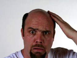 The Main Causes Of Hair Loss, How to Stop It And Experience How Regrowth
