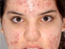 Revised Effective Natural Acne Treatments