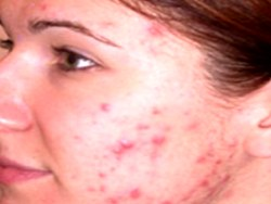 Hormonal Imbalance and Acne – Understanding Of The Relationship Between Acne And Hormones