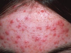 All About Acne And Acne Treatments That Are Garcontrazados To Work