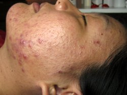 Acne Pills – How Effective Are They In The Fight Against Acne