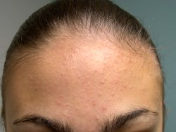 Need Help With Acne? Use Of Topical Treatments for Acne