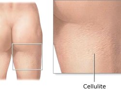 Understanding Of Cellulite Fat Link?