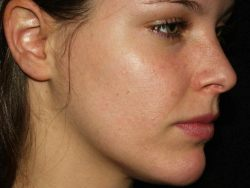 Acne Treatment – Prevent Acne Shape Very Simple