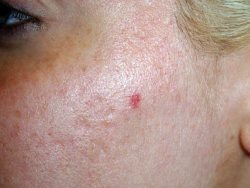 The Purpose Of Medicine Acne