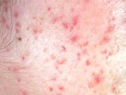 Benzoyl Peroxide is Ineffective For Severe Acne?