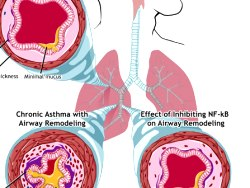 Asthma Treatment – What You Need Medication