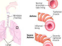 Information About Asthma And Allergies