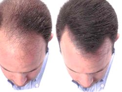 Mens Hair Regrowth Erfahrung in Flash
