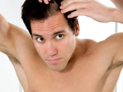 Male Hair Loss Solutions – Prevent Baldness Men With Hair Loss Solutions