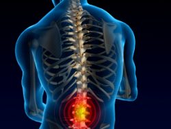 What Causes Lower Back Pain – And What You Can Do About It?