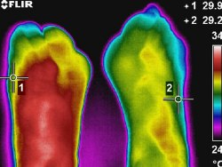 Thermografie und REHABILITATION