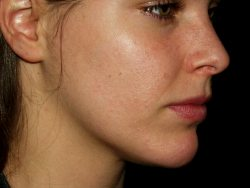 Acne Free In 3 Days By Chris Gibson – Consideration of a breakthrough Acne Cure