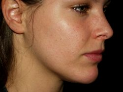 Acne Free In 3 Days – Scam Or Revolutionary Cure?