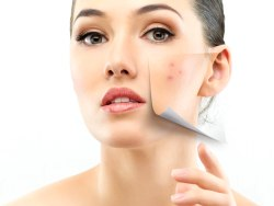Acne Pills – Choosing the Right