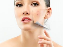 Acne Laser Treatment – The Truth