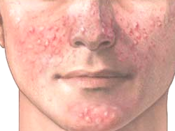 Topical Skin For Adult Acne Treatment