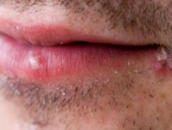 How to Get Rid of Cold Sores – Quickly Relieve Your Worst Oral Herpes Cold Sore