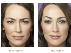 The correct way to use botox to remove wrinkles eyes