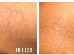 Spider Veins – forms and types of spider veins